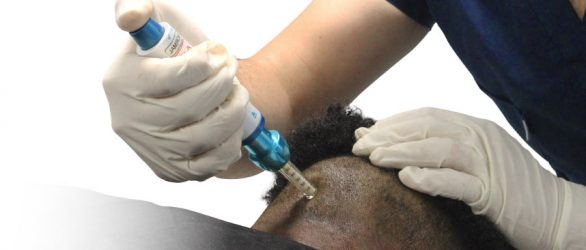 Needle-Free-Hair-Transplantation-in-Turkey
