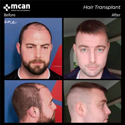 hair-transplant-in-turkey-before-after-01
