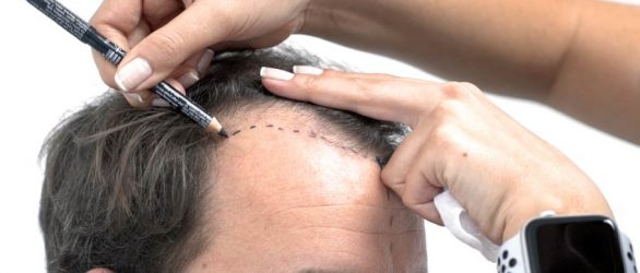 hair-transplant-turkey