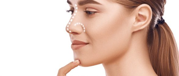 rhinoplasty-turkey