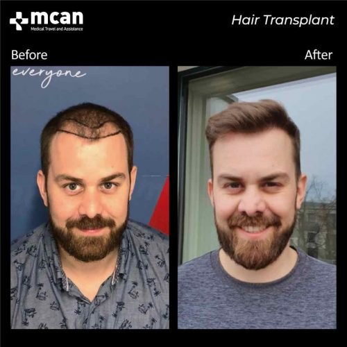 transplant-in-turkey-before-after-03