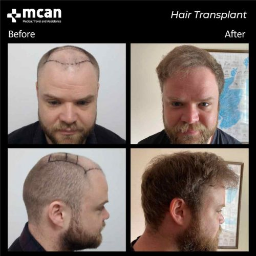 transplant-in-turkey-before-after-04