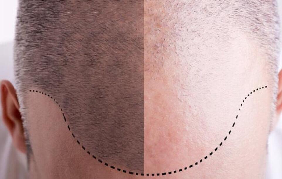 Haartransplantation Türkei im Detail