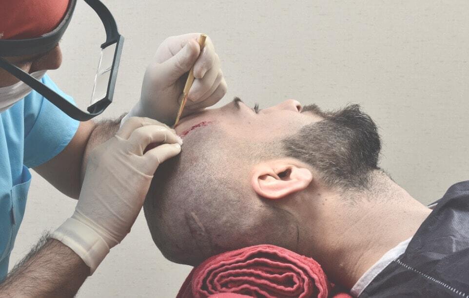 DHI Haartransplantation Türkei