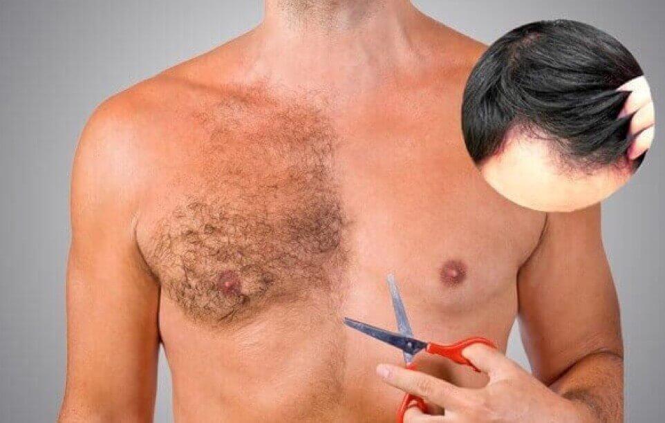 Koerperhaar Haartransplantation Türkei