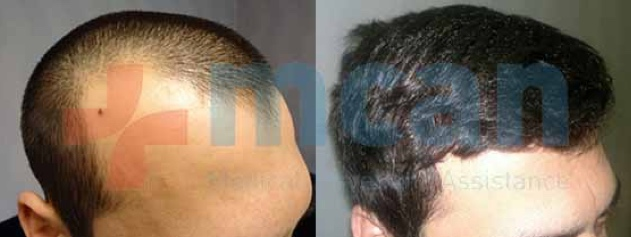 FUE Hair Transplant in Turkey - Before - After