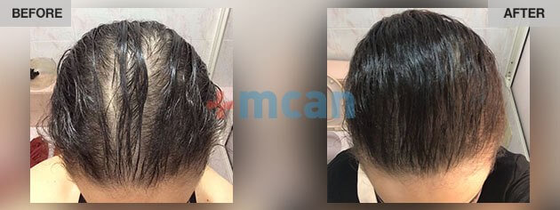 Hair Transplant In Turkey Fue Hair Transplantation Mcan Health