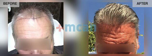 Hair Transplant Turkey - Before and After 01